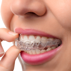 woman putting in clear braces