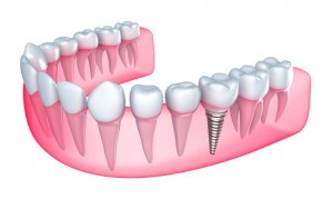 Caring for dental implants according to Collierville dentist Dr. Holcomb