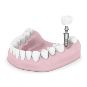 dental implant treatment.
