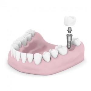 dental implant treatment.