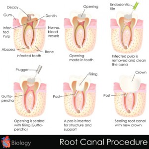 A root canal can save your tooth.