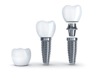 tooth implant dental structure