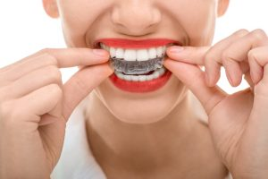 Why should I get Invisalign in Collierville?