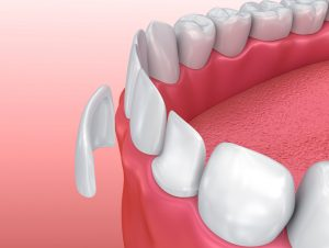 Porcelain veneers in Colliersville cover gaps.