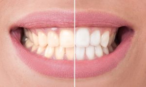 Your dentist for teeth whitening in Collierville.